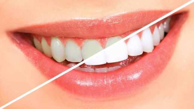 This panacea remedy will eliminate yellowing of teeth from the roots/World Creativities
