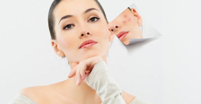 If you are troubled by facial spots, follow these panacea tips/worldcreativities