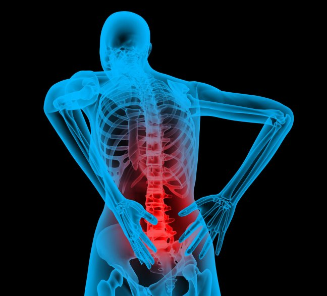 What is Back pain Causes, Diagnoses, Treatment, Precautions, and Home remedies Solutions/WorldCreativities