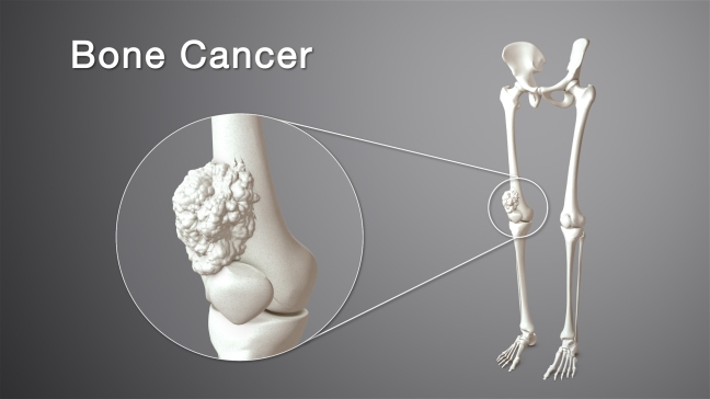 How to cure bone cancer, let's know some tips about bone cancer and its surgery/WorldCreativities