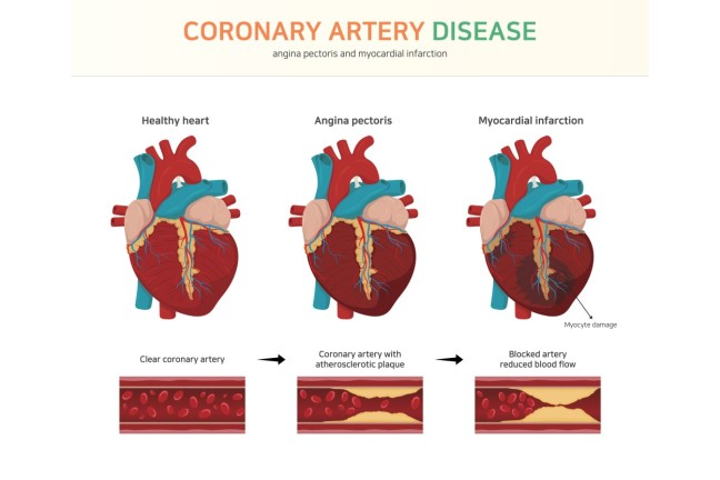 What is coronary artery disease? What causes coronary artery disease, let's know full information about it/WorldCreativities
