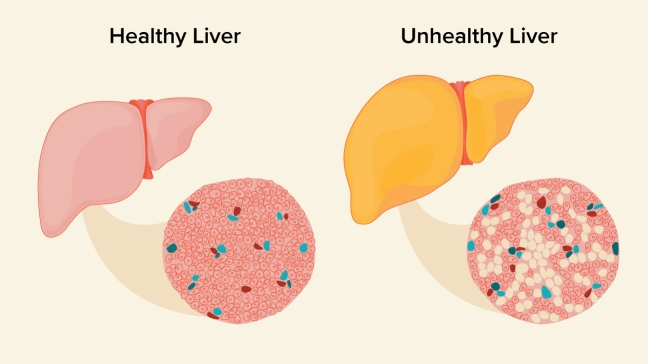 Fatty Liver Symptoms, Causes, Treatment, and Aromatic Methods/WorldCreativities