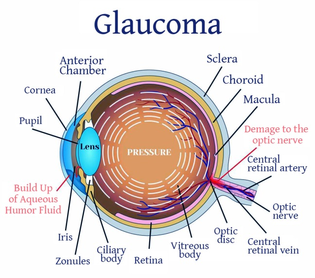 What is Glaucoma? Symptoms, Causes, Treatment, and Solutions/WorldCreativities