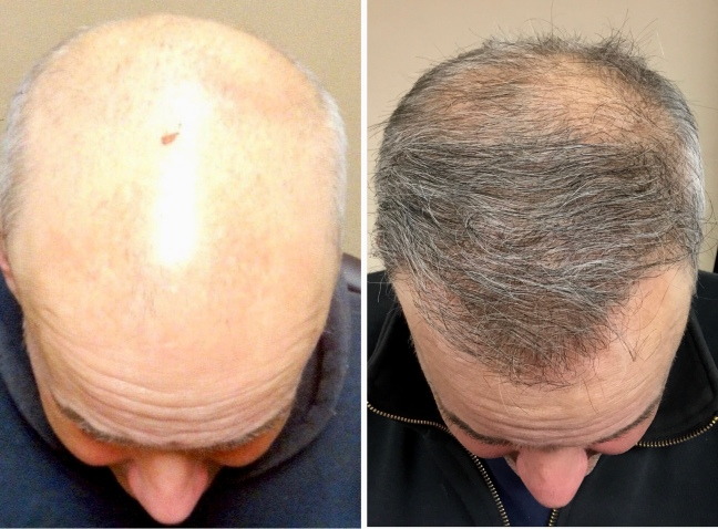 Hair Transplant Procedure | WHY YOU NEED A HAIR TRANSPLANT?/WorldCreativities