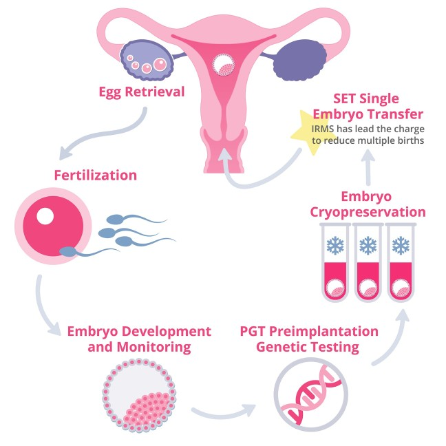 How to get IVF? Know complete information about IVF and what are the symptoms of pregnancy/WorldCreativities