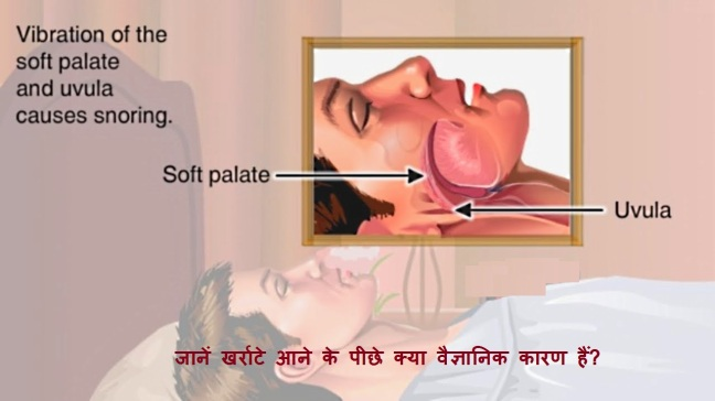 Let us know the complete information and remedies for how snoring can be cured/WorldCreativities