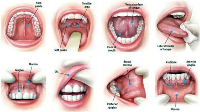 What is oral cancer and how to cure it, which is very important for you to know/WorldCreativities
