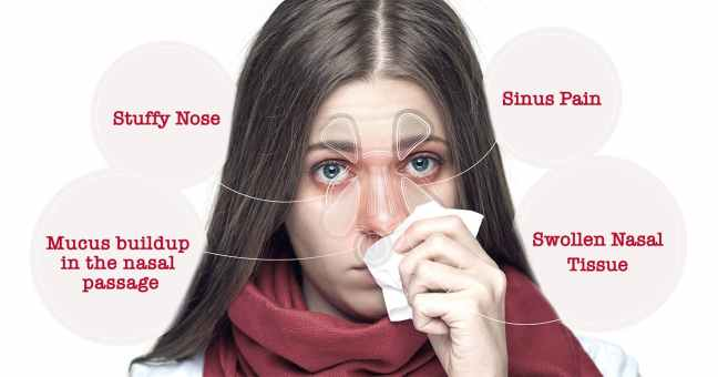 Nasal congestion Symptoms, Causes, Diagnosis and Home remedies with solultions/WorldCreativities