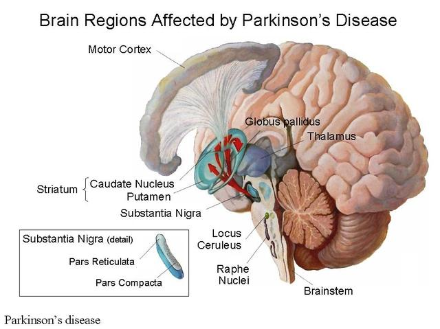 What is Parkinson's disease, how to treat and what are the best solutions/WorldCreativities