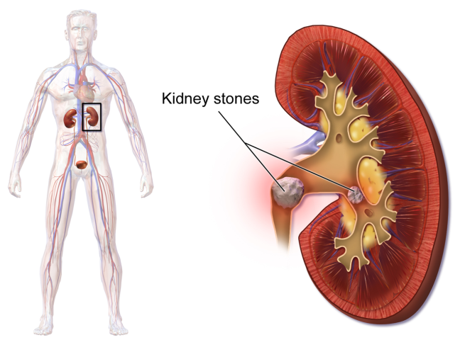 What is a Kidney stone? Causes, Symptoms, Treatment Solutions/WorldCreativities
