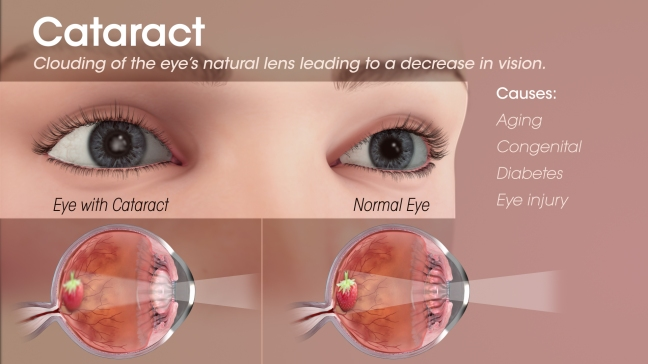 What is cataract? Symptoms, how can cataract be treated?/WorldCreativities