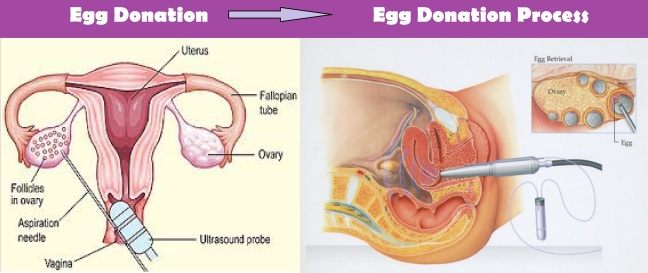 What is female egg donation? Process of female egg donation/WorldCreativities
