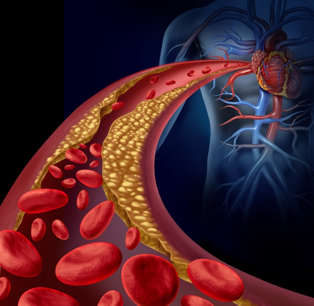 What is heart disease What are the symptoms of heart disease? must read/WorldCreativities