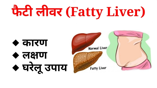 Fatty liver symptoms, causes and home Ayurvedic remedies/WorldCreativities